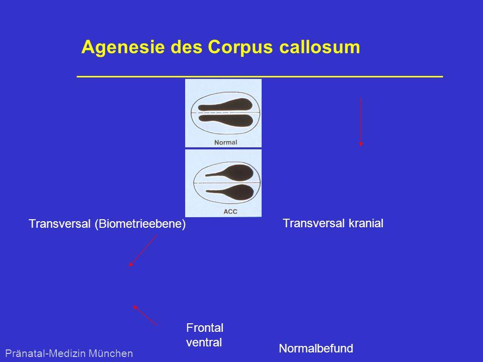 Agenesie des Corpus callosum Frontal ventral Transversal (Biometrieebene) Transversal kranial Normalbefund Pränatal-Medizin München