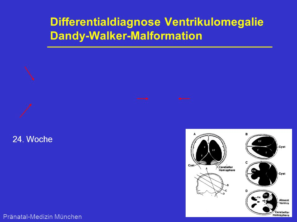 Differentialdiagnose Ventrikulomegalie Dandy-Walker-Malformation 24. Woche Pränatal-Medizin München
