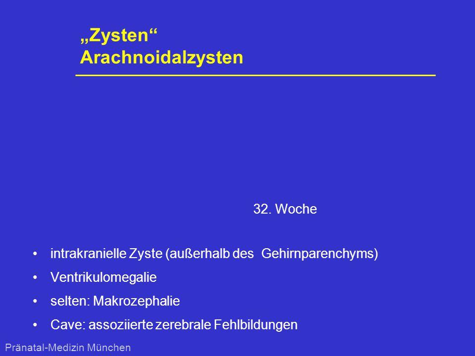 """""""Zysten"""" Arachnoidalzysten intrakranielle Zyste (außerhalb des Gehirnparenchyms) Ventrikulomegalie selten: Makrozephalie Cave: assoziierte zerebrale F"""
