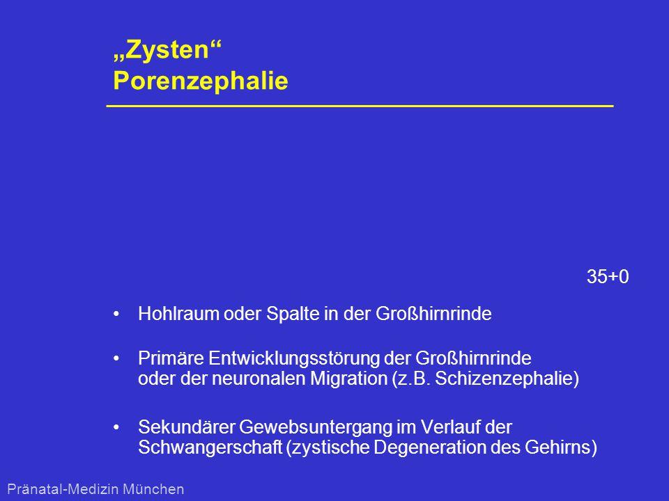 """""""Zysten"""" Porenzephalie Hohlraum oder Spalte in der Großhirnrinde Primäre Entwicklungsstörung der Großhirnrinde oder der neuronalen Migration (z.B. Sch"""