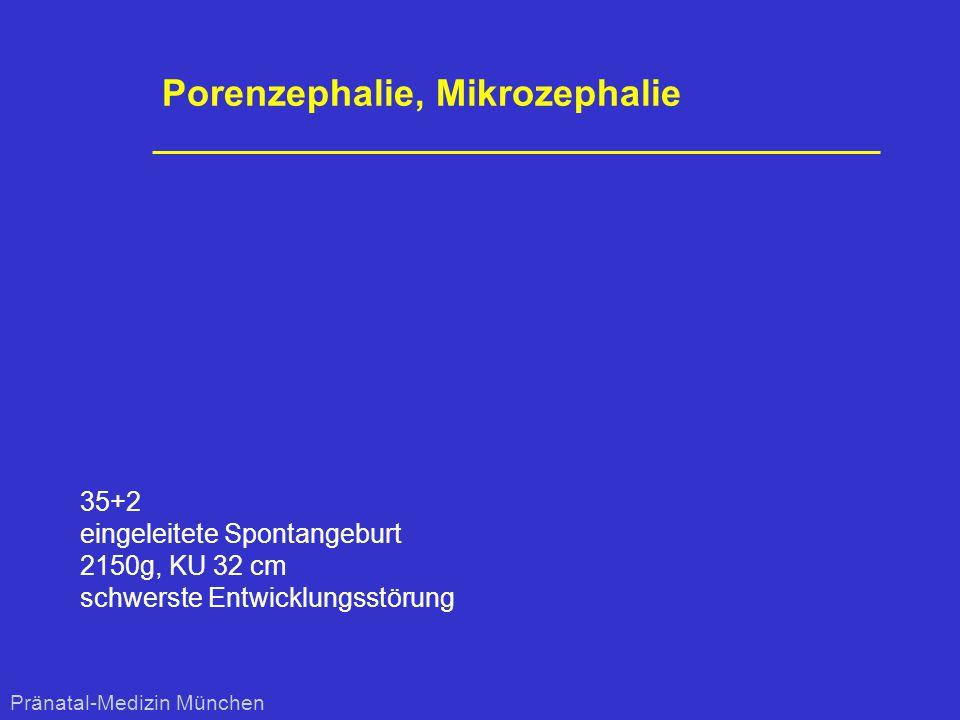 Porenzephalie, Mikrozephalie 35+2 eingeleitete Spontangeburt 2150g, KU 32 cm schwerste Entwicklungsstörung Pränatal-Medizin München