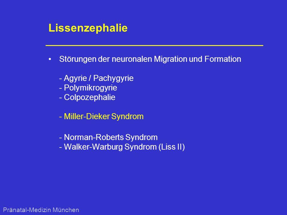 Lissenzephalie Störungen der neuronalen Migration und Formation - Agyrie / Pachygyrie - Polymikrogyrie - Colpozephalie - Miller-Dieker Syndrom - Norma