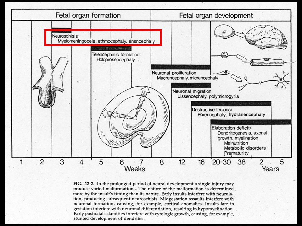 """Alobäre Holoprosenzephalie mit wenig Gehirnparenchym Planum fronto-occipitale: € Kleinhirn Monoventrikel, fusionierte Thalami – """"hufeisenförmig Pränatal-Medizin München 15."""