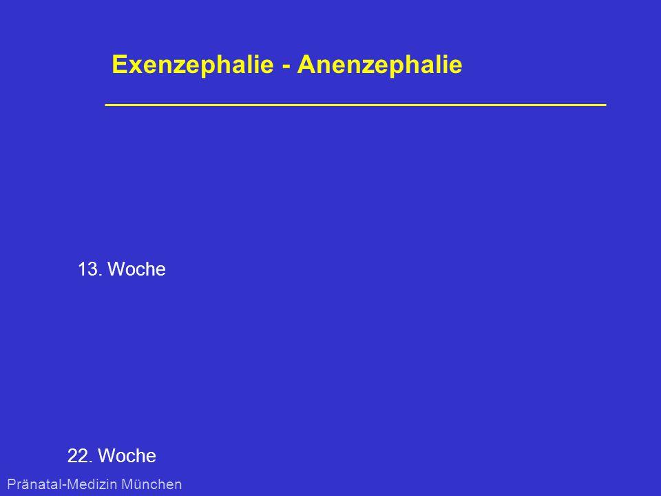 Exenzephalie - Anenzephalie 22. Woche 13. Woche Pränatal-Medizin München