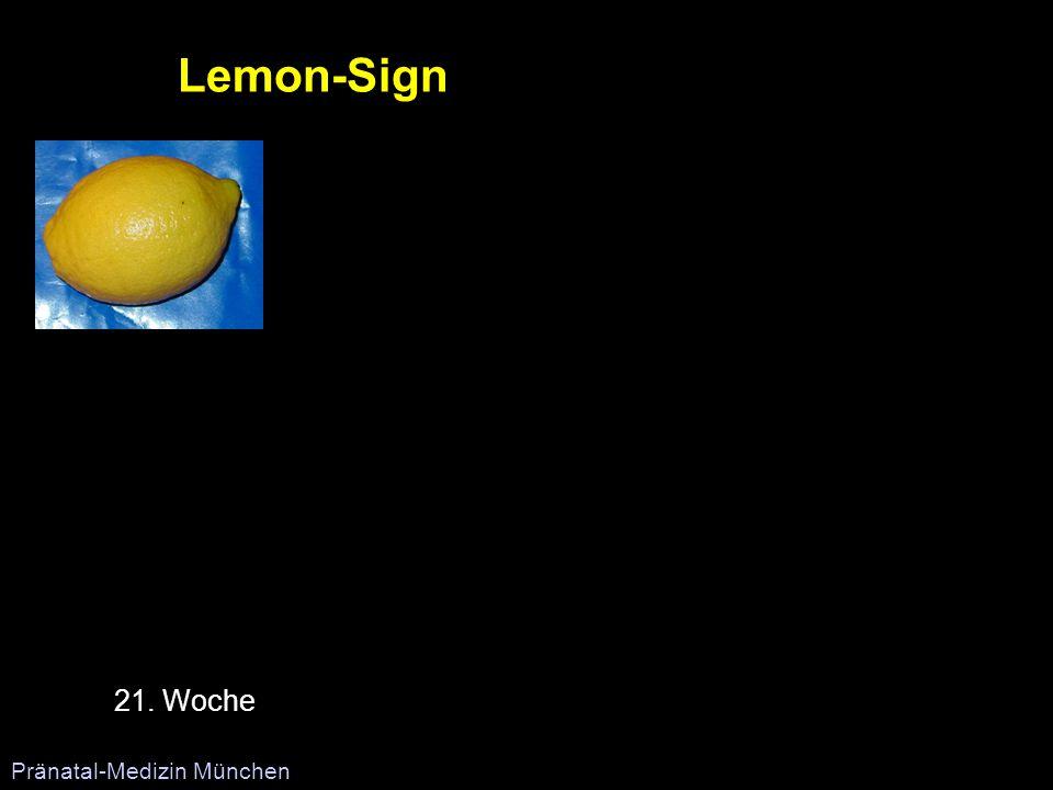 Lemon-Sign 21. Woche Pränatal-Medizin München