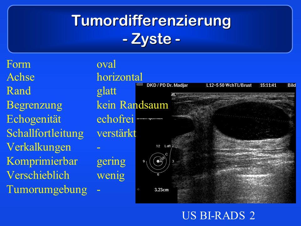 Tumordifferenzierung - Zyste - Formoval Achsehorizontal Randglatt Begrenzungkein Randsaum Echogenitätechofrei Schallfortleitungverstärkt Verkalkungen-