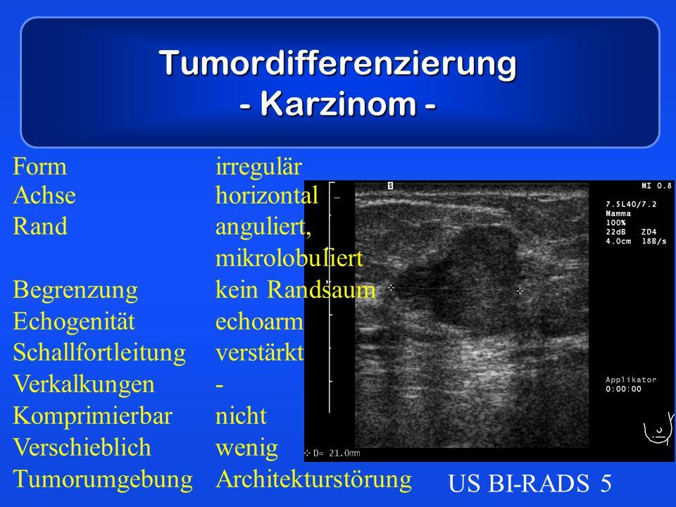 Tumordifferenzierung - Karzinom - Formirregulär Achsehorizontal Randanguliert, mikrolobuliert Begrenzungkein Randsaum Echogenitätechoarm Schallfortlei