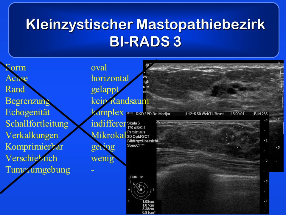 Kleinzystischer Mastopathiebezirk BI-RADS 3 Formoval Achsehorizontal Randgelappt Begrenzungkein Randsaum Echogenitätkomplex Schallfortleitungindiffere