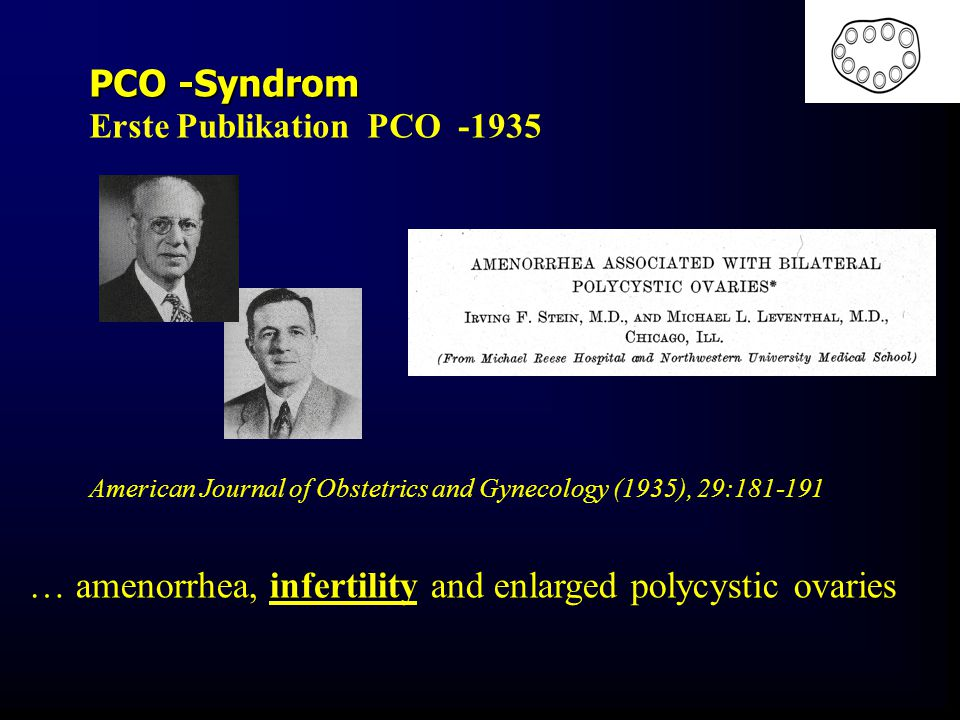 American Journal of Obstetrics and Gynecology (1935), 29:181-191 PCO -Syndrom Erste Publikation PCO -1935 … amenorrhea, infertility and enlarged polyc