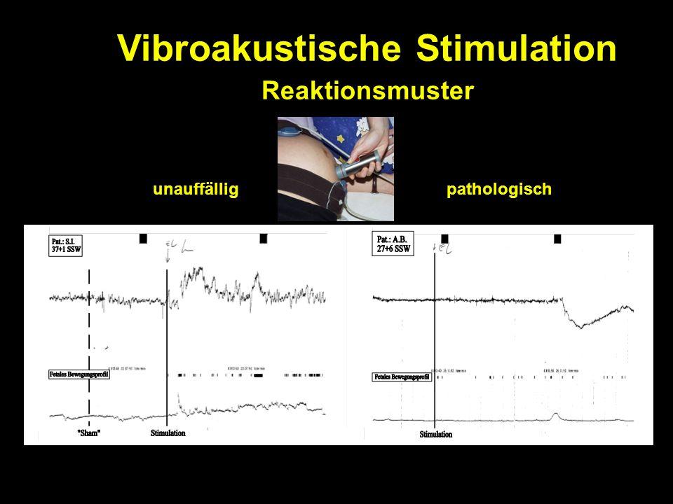Vibroakustische Stimulation Reaktionsmuster unauffälligpathologisch