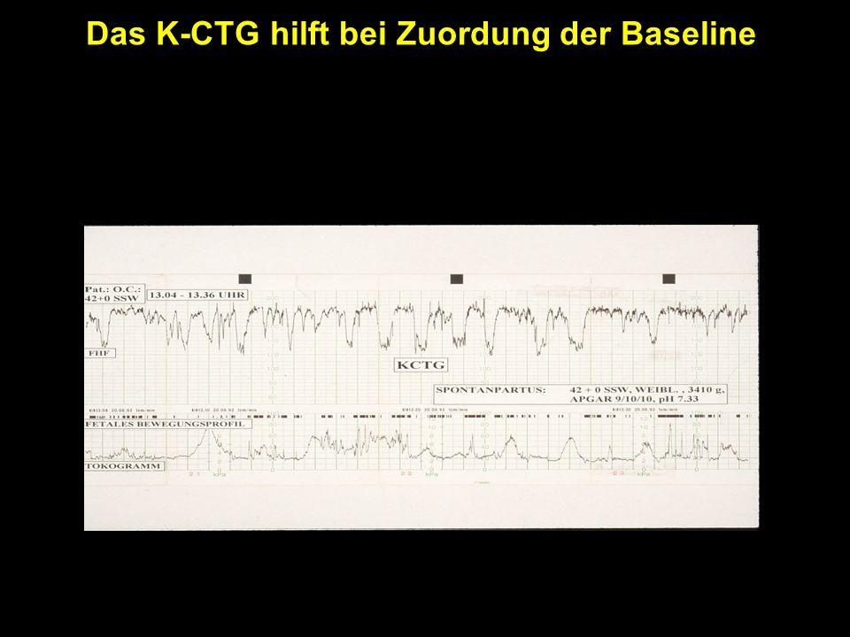 Fetales Bewegungsprofil Das K-CTG hilft bei Zuordung der Baseline