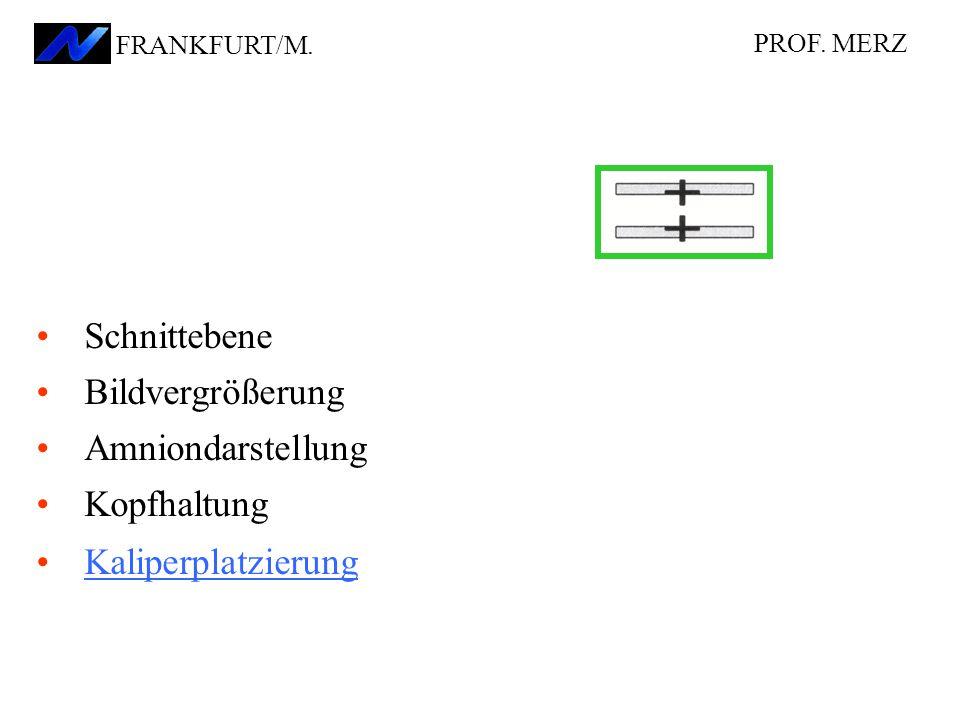 Schnittebene Bildvergrößerung Amniondarstellung Kopfhaltung Kaliperplatzierung PROF. MERZ FRANKFURT/M.