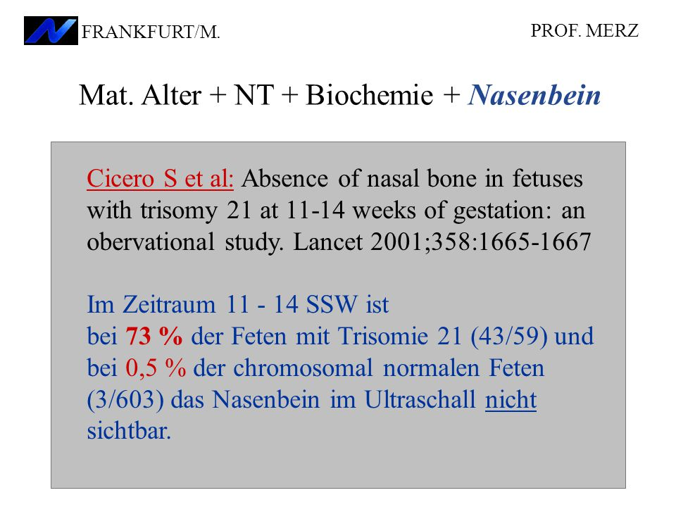 Cicero S et al: Absence of nasal bone in fetuses with trisomy 21 at 11-14 weeks of gestation: an obervational study.
