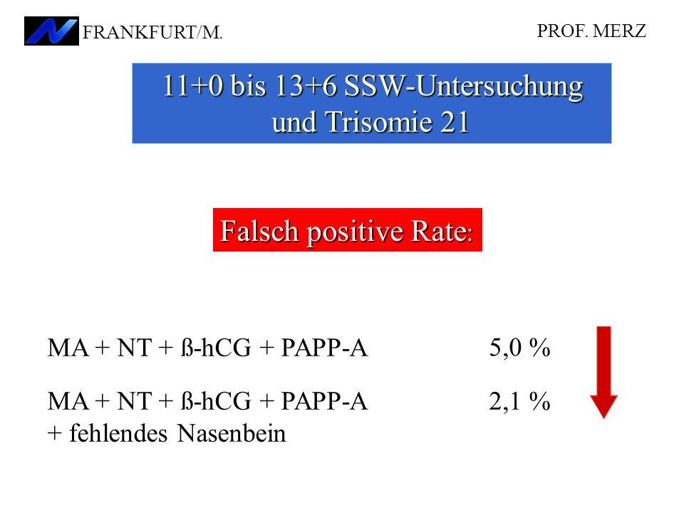 PROF. MERZ FRANKFURT/M. 11+0 bis 13+6 SSW-Untersuchung und Trisomie 21 Falsch positive Rate : MA + NT + ß-hCG + PAPP-A + fehlendes Nasenbein MA + NT +