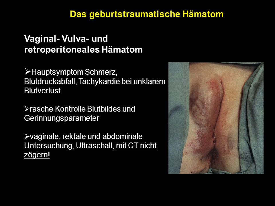 Vaginal- Vulva- und retroperitoneales Hämatom  Hauptsymptom Schmerz, Blutdruckabfall, Tachykardie bei unklarem Blutverlust  rasche Kontrolle Blutbildes und Gerinnungsparameter  vaginale, rektale und abdominale Untersuchung, Ultraschall, mit CT nicht zögern.