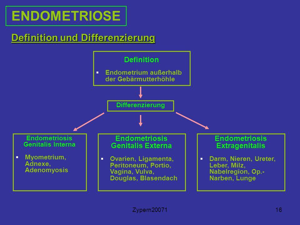 Zypern2007116 Definition und Differenzierung Definition ▪ Endometrium außerhalb der Gebärmutterhöhle Differenzierung Endometriosis Genitalis Interna ▪ Myometrium, Adnexe, Adenomyosis Endometriosis Genitalis Externa ▪ Ovarien, Ligamenta, Peritoneum, Portio, Vagina, Vulva, Douglas, Blasendach ENDOMETRIOSE Endometriosis Extragenitalis ▪ Darm, Nieren, Ureter, Leber, Milz, Nabelregion, Op.- Narben, Lunge