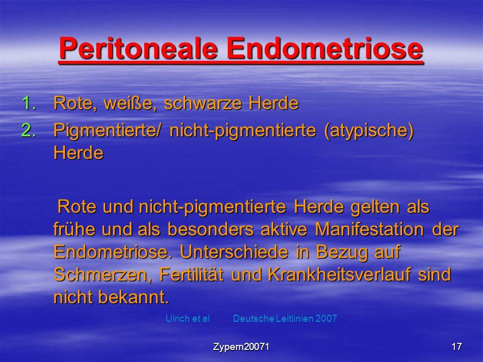 Zypern2007117 Peritoneale Endometriose 1.Rote, weiße, schwarze Herde 2.Pigmentierte/ nicht-pigmentierte (atypische) Herde Rote und nicht-pigmentierte
