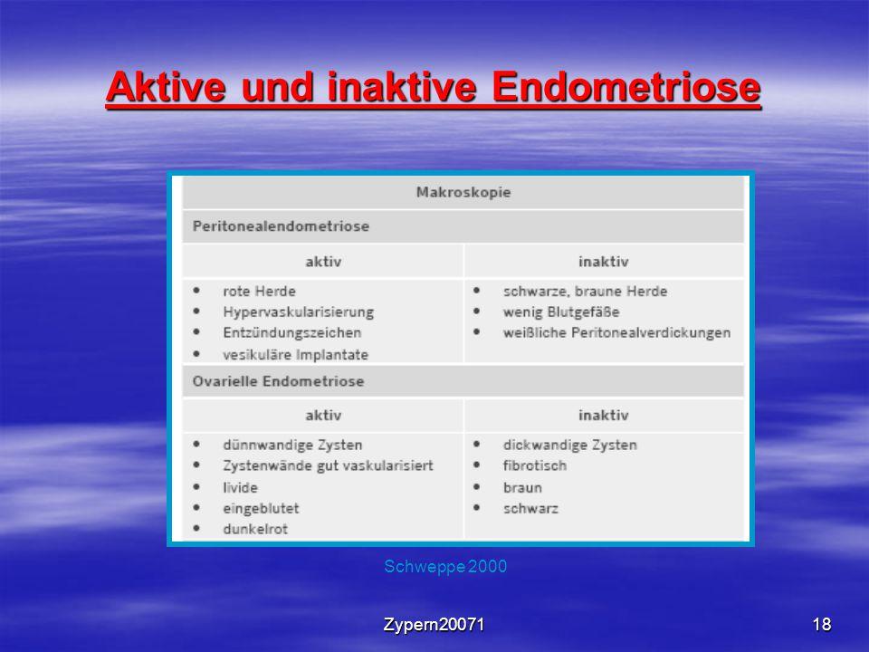 Zypern2007118 Aktive und inaktive Endometriose Schweppe 2000