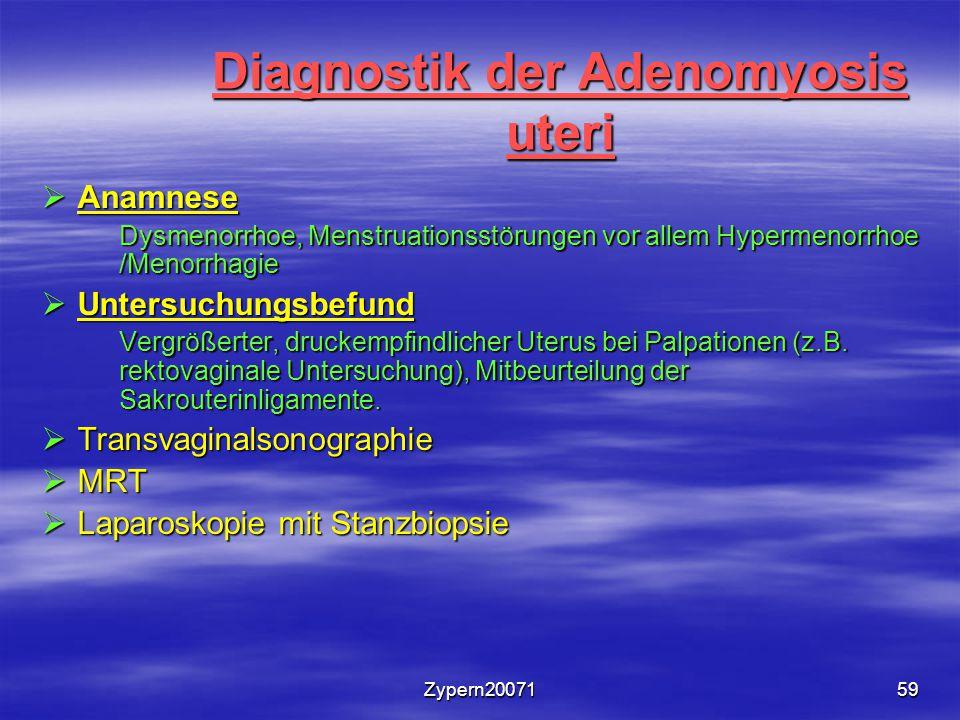 Zypern2007159 Diagnostik der Adenomyosis uteri  Anamnese Dysmenorrhoe, Menstruationsstörungen vor allem Hypermenorrhoe /Menorrhagie Dysmenorrhoe, Menstruationsstörungen vor allem Hypermenorrhoe /Menorrhagie  Untersuchungsbefund Vergrößerter, druckempfindlicher Uterus bei Palpationen (z.B.