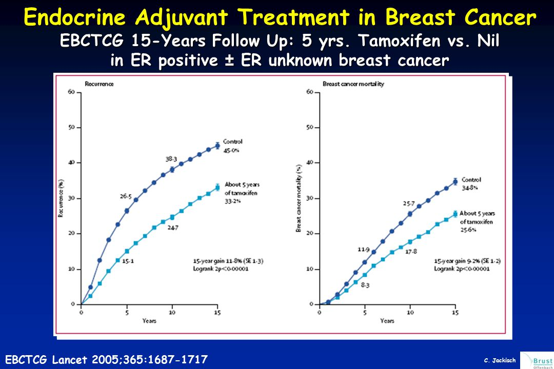 0 10 20 30 40 50 60 15-year gain 3.0% (SE 1.3) Logrank 2p<0.00001 Polychemotherapy vs not, by entry age <50 or 50- 69 years:15-year probabilities of recurrence and of breast cancer mortality Control 50.4% Polychemotherapy 47.4% 18.7 Years 051510 Entry age 50-69 years: breast cancer mortality Breast cancer mortality (%) 35.4 21.3 38.3 Younger women, 35% node-positive; older women, 70% node-positive.EBCTCG 2005 Lancet 2005;365:1687-1717