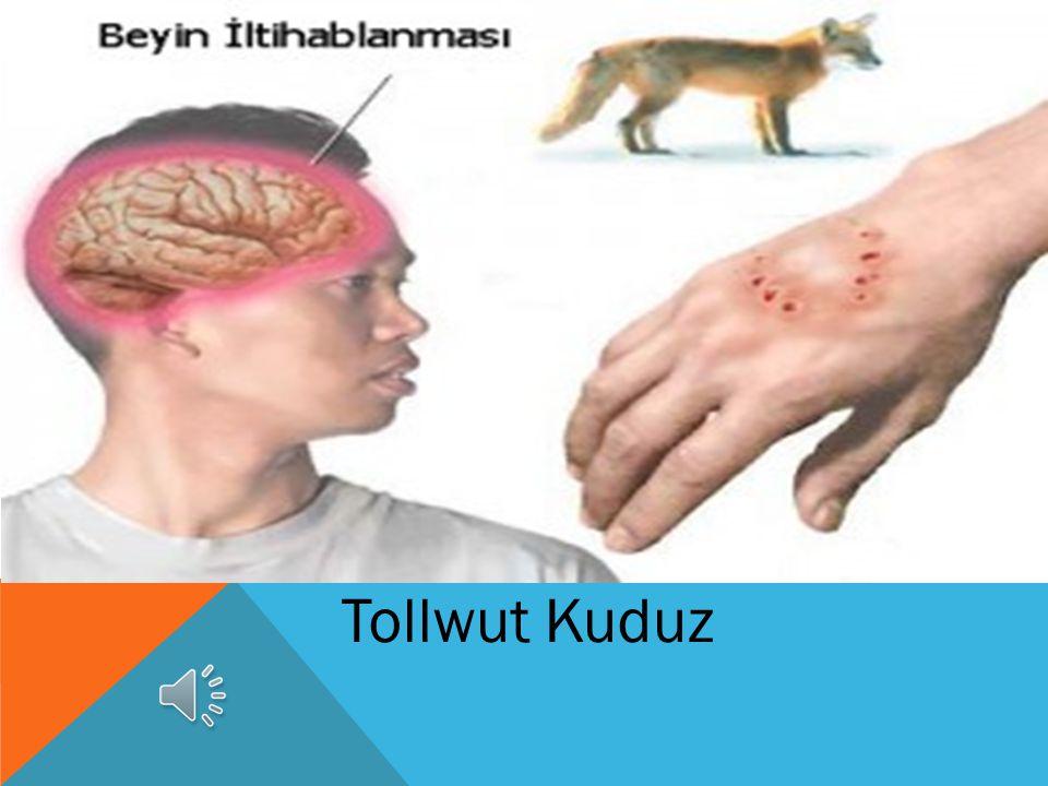 Migräne Migren