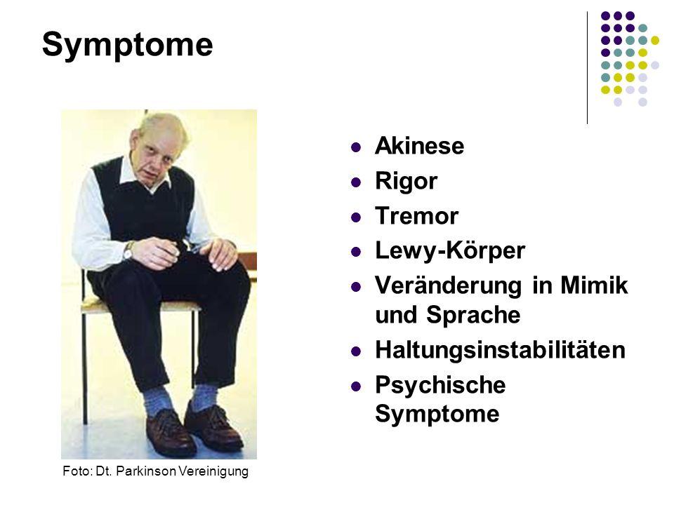 Akinese Rigor Tremor Lewy-Körper Veränderung in Mimik und Sprache Haltungsinstabilitäten Psychische Symptome Foto: Dt. Parkinson Vereinigung Symptome