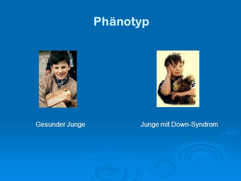 Gesunder Junge Junge mit Down-Syndrom Phänotyp