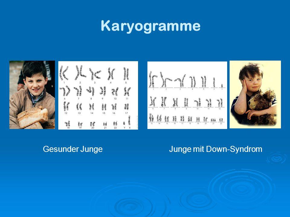 Chromosom 21 Anfang Mai 2000 wurde die vollständige Sequenz vom Chromosom 21 veröffentlicht (zweites vollständig sequenziertes Chromosom) besteht aus ca.