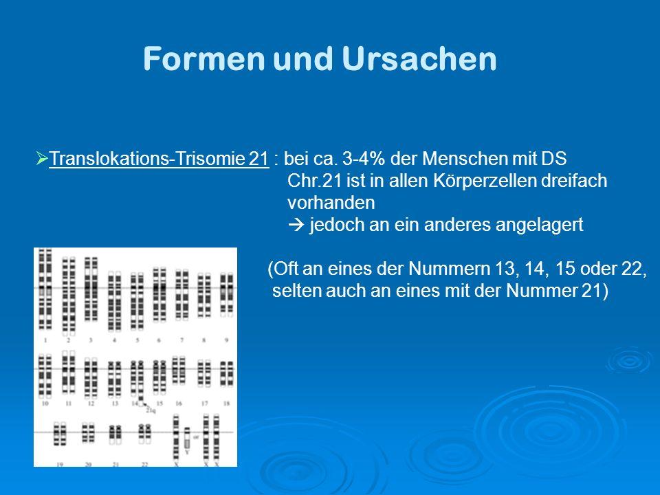 Formen und Ursachen Translokations-Trisomie 21 : bei ca.