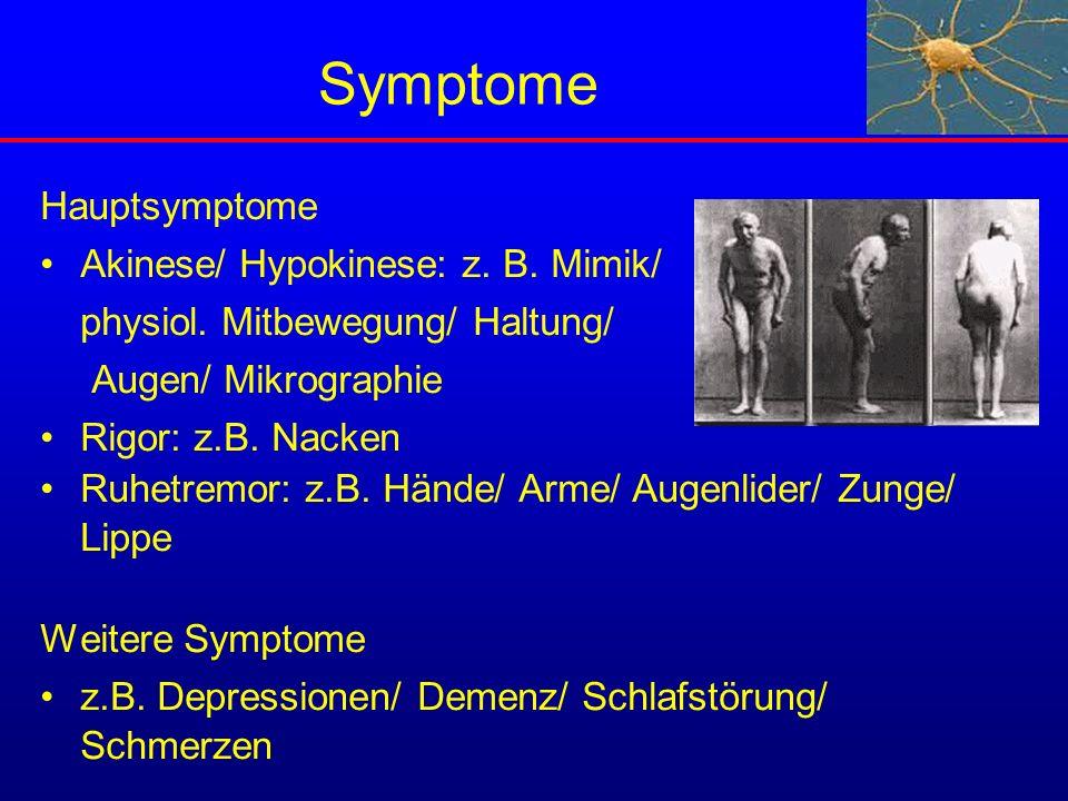 Symptome Hauptsymptome Akinese/ Hypokinese: z. B. Mimik/ physiol. Mitbewegung/ Haltung/ Augen/ Mikrographie Rigor: z.B. Nacken Ruhetremor: z.B. Hände/