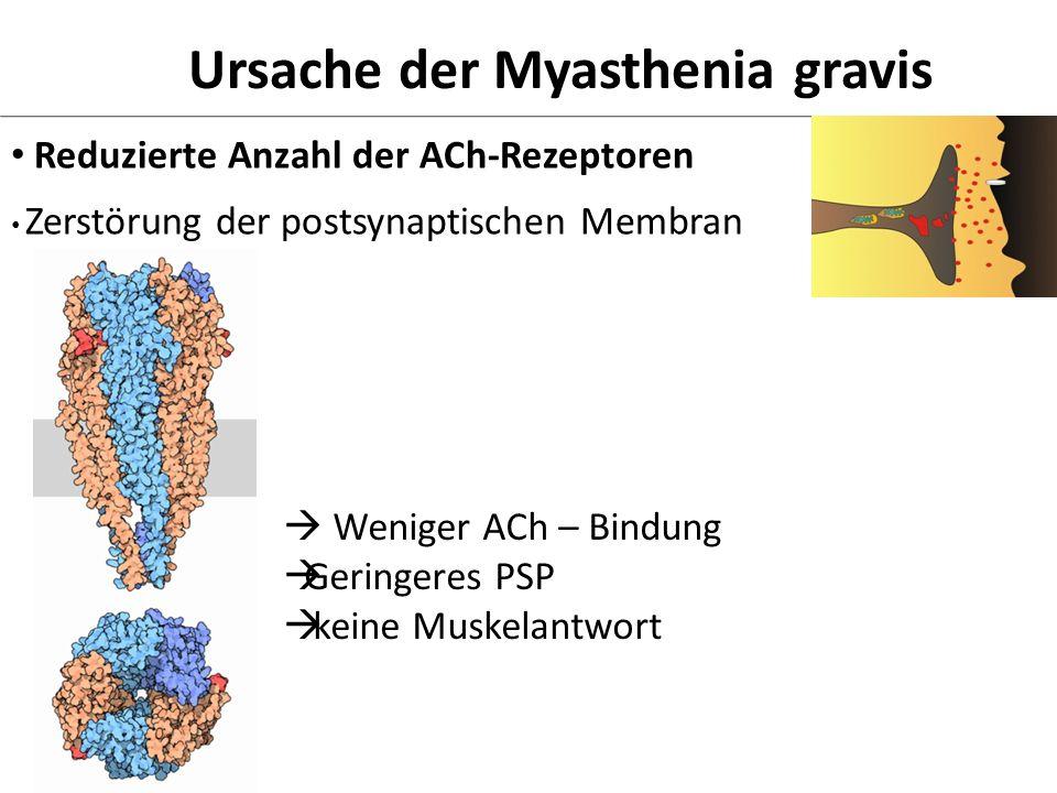 Ursache der Myasthenia gravis Reduzierte Anzahl der ACh-Rezeptoren Weniger ACh – Bindung Geringeres PSP keine Muskelantwort Zerstörung der postsynapti