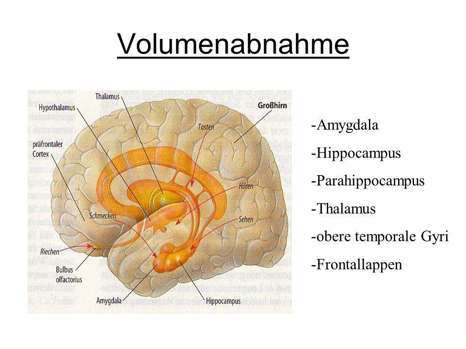 Volumenabnahme -Amygdala -Hippocampus -Parahippocampus -Thalamus -obere temporale Gyri -Frontallappen