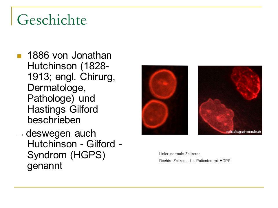 Geschichte 1886 von Jonathan Hutchinson (1828- 1913; engl. Chirurg, Dermatologe, Pathologe) und Hastings Gilford beschrieben deswegen auch Hutchinson