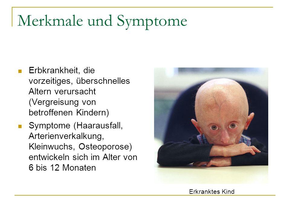 Merkmale und Symptome Erbkrankheit, die vorzeitiges, überschnelles Altern verursacht (Vergreisung von betroffenen Kindern) Symptome (Haarausfall, Arte