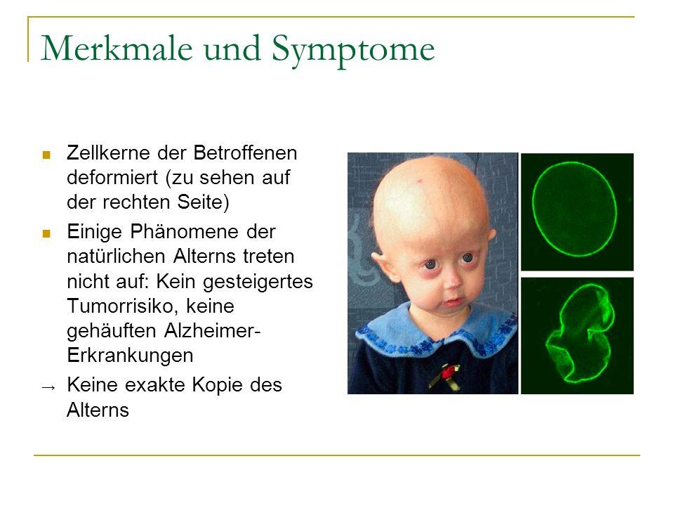 Merkmale und Symptome Zellkerne der Betroffenen deformiert (zu sehen auf der rechten Seite) Einige Phänomene der natürlichen Alterns treten nicht auf: