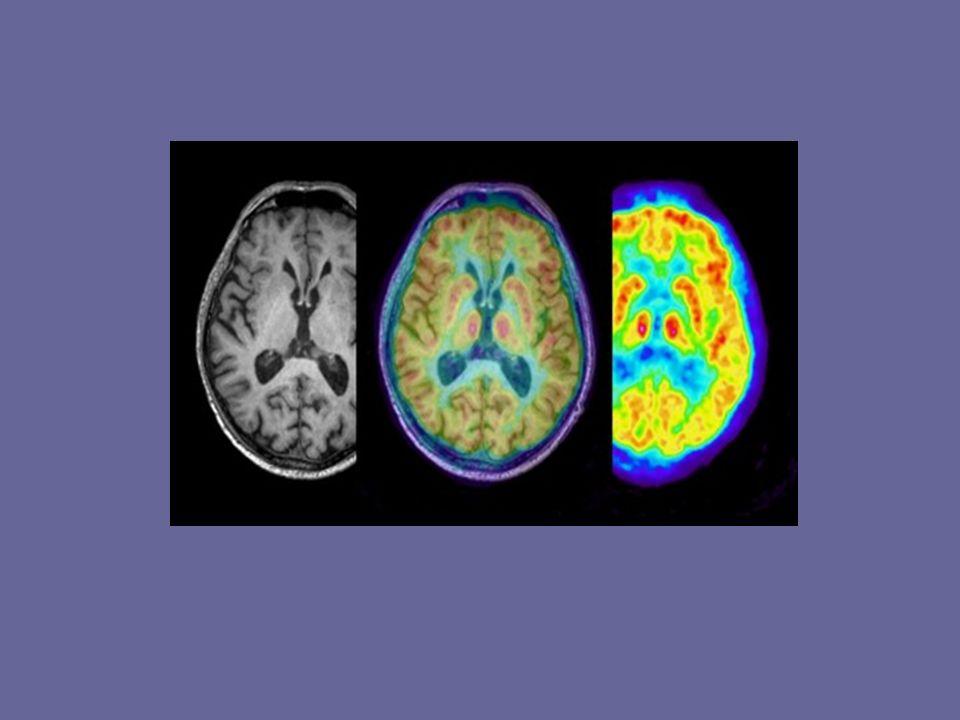 Röntgenstrahl Computer Tomographie Das Gehirn wird mit Röntgenstrahlen beschickt Strahlen treten gedämpft auf der anderen Seite des Gewebes aus Messung der Strahlen mithilfe von Detektoren