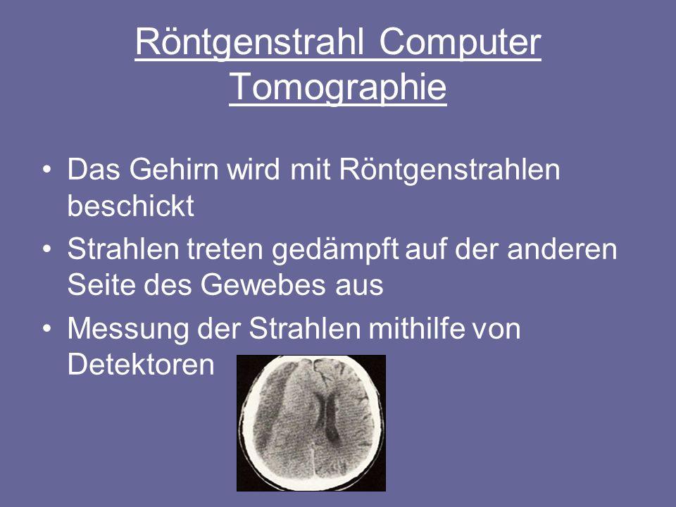 PET Positronen-Emssions-Thomograpie Liefert Bilder der Gehirnaktivität jedoch nicht der Gehirnstruktur Injektion eines radioaktiven Stoffes Liefert ein Abbild der Stärke der Radioaktivität in den verschiedenen Teilen des Gehirns (aktive Areale strahlen stärker)