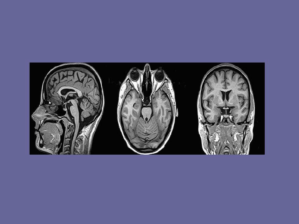fMRT Funktionelle Magnetresonanztomographie Weiterentwicklung der MRT Methode Liefert funktionelle und strukturelle Informationen Veränderung der Gewebedurchblutung führt zu einer Änderung des Magnetfeldes