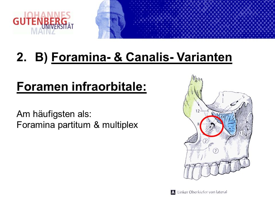 2.B) Foramina- & Canalis- Varianten Foramen infraorbitale: Am häufigsten als: Foramina partitum & multiplex