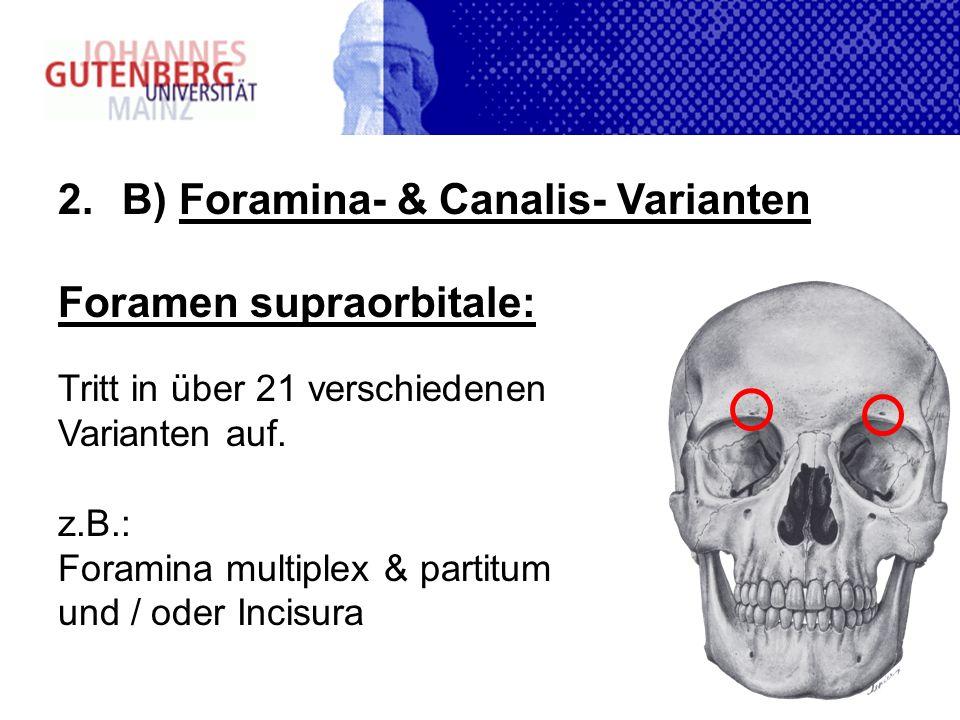 2.B) Foramina- & Canalis- Varianten Foramen supraorbitale: Tritt in über 21 verschiedenen Varianten auf. z.B.: Foramina multiplex & partitum und / ode
