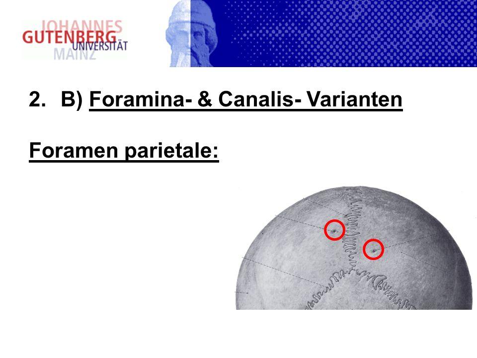 2.B) Foramina- & Canalis- Varianten Foramen parietale: