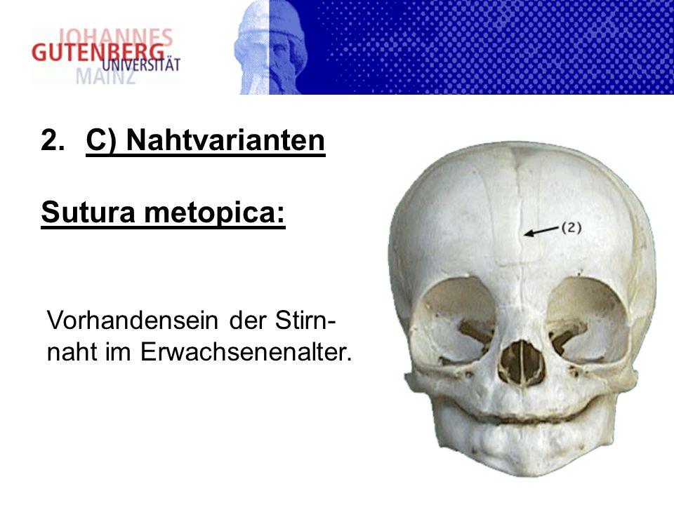 2.C) Nahtvarianten Sutura metopica: Vorhandensein der Stirn- naht im Erwachsenenalter.