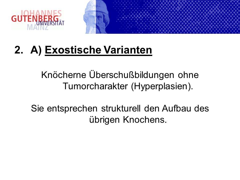 2.A) Exostische Varianten Knöcherne Überschußbildungen ohne Tumorcharakter (Hyperplasien). Sie entsprechen strukturell den Aufbau des übrigen Knochens