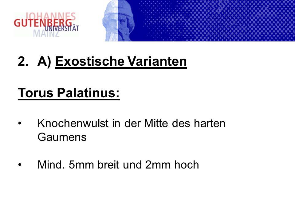 2.A) Exostische Varianten Torus Palatinus: Knochenwulst in der Mitte des harten Gaumens Mind. 5mm breit und 2mm hoch