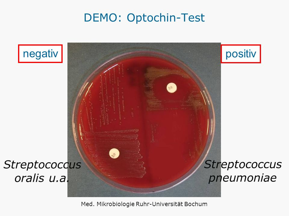 DEMO: Optochin-Test positiv negativ Streptococcus pneumoniae Streptococcus oralis u.a. Med. Mikrobiologie Ruhr-Universität Bochum