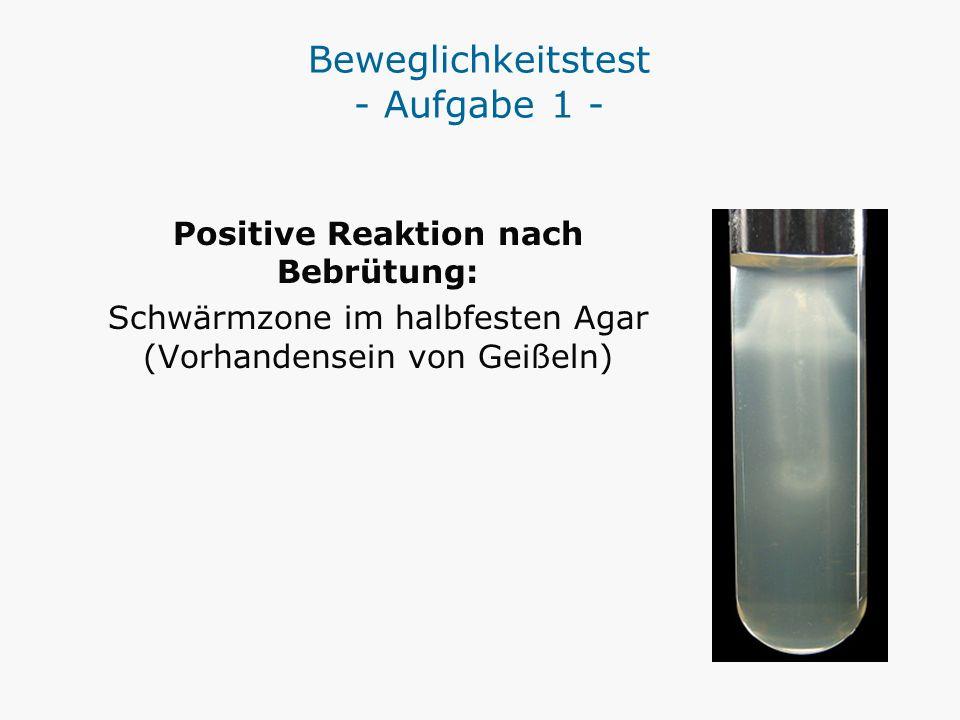 Beweglichkeitstest - Aufgabe 1 - Positive Reaktion nach Bebrütung: Schwärmzone im halbfesten Agar (Vorhandensein von Geißeln)