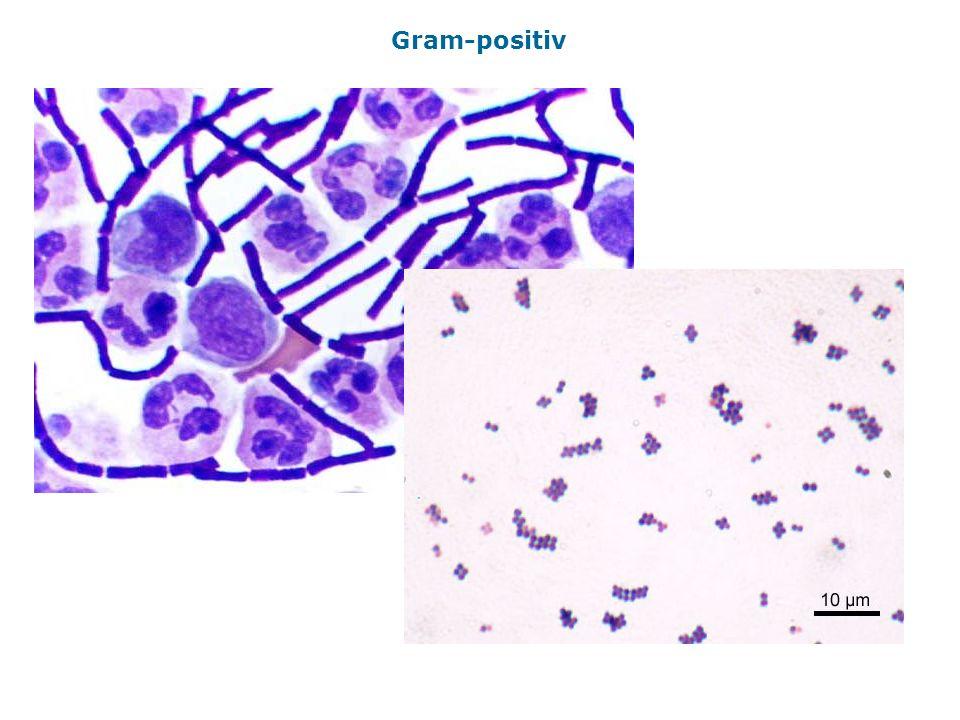 Serotyp-Verteilung invasiver Pneumokokken Erkrankungen bei Kindern, Deutschland (1997-2006)