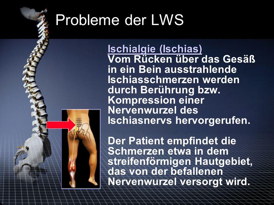Probleme der LWS Ischialgie (Ischias) Ischialgie (Ischias) Vom Rücken über das Gesäß in ein Bein ausstrahlende Ischiasschmerzen werden durch Berührung bzw.