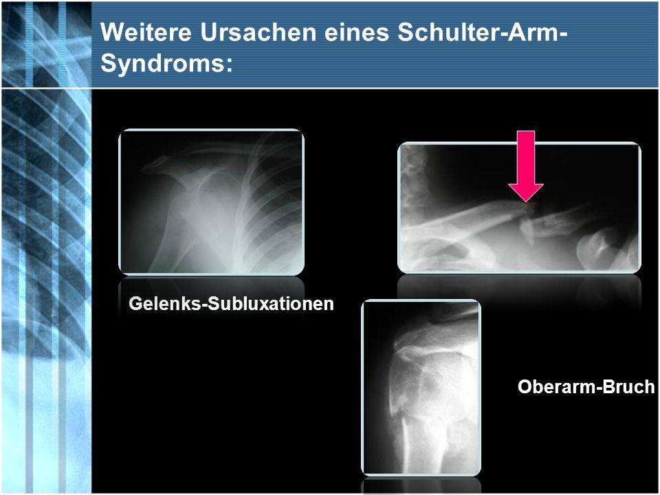 Weitere Ursachen eines Schulter-Arm- Syndroms: Gelenks-Subluxationen Oberarm-Bruch