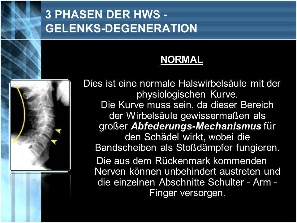 PHASE 1 Die erste Phase der Degeneration stellt sich meist als Streckhaltung der HWS dar.